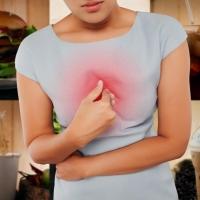 Mit tegyen, ha diéta ellenére sem javul a reflux?