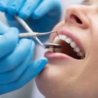 Véralvadásgátlás esetén is részt vehet fogászati kezelésen