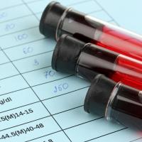 Mikor van szükség fruktózamin mérésre cukorbetegség esetén?