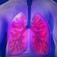 Mi a tüdőfibrózis?