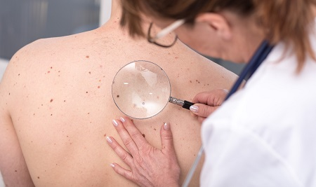 A legfontosabb kérdések a melanoma kezelése kapcsán