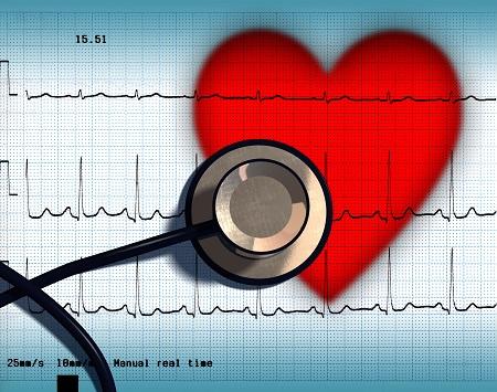 Így segít a szívritmuszavarok diagnosztizálásában a 48-168 órás EKG