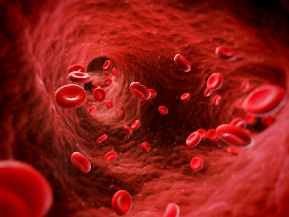 A trombózis kialakulásához vezető 3 gyakori ok