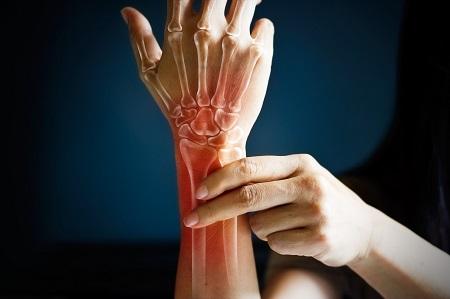 Köszvény vagy rheumatoid arthritis?