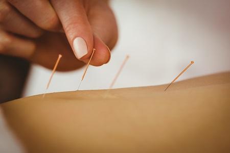Hogyan hat az akupunktúrás fájdalomcsillapítás?