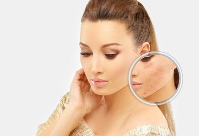 Megviselte a stressz a bőrét? A gyógykozmetikus segíthet