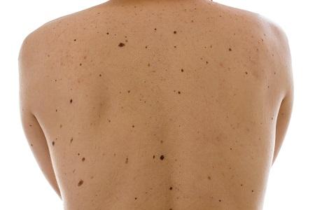 A sok anyajegy a melanoma rizikófaktora, fontos az anyajegyszűrés!