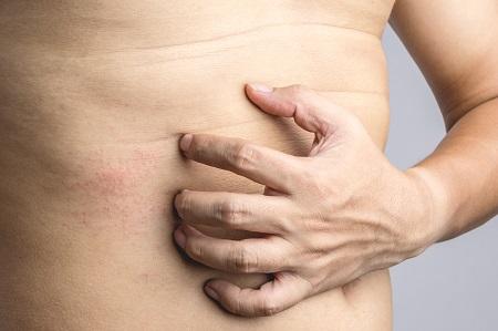 Az ekcéma számos formában jelentkezhet, de a bőrgyógyász kezelése elengedhetetlen.